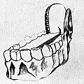Bicuspid by Kevin Ball