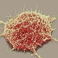 Brain Cancer Cell, Sem by Steve Gschmeissner