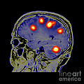 Brain Tumors by Medical Body Scans