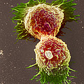 Breast Cancer Cells by Steve Gschmeissner