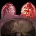 Breast Cancer, Mri Scan by Du Cane Medical Imaging Ltd