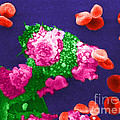 Cancer Cell Death, Sem 3 Of 6 by Science Source