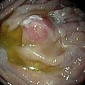 Carcinoid Tumour In The Stomach by Gastrolab