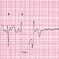 Cardioversion, 1 Of 2 by Science Source
