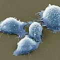 Cervical Cancer Cells, Sem by Steve Gschmeissner
