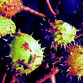 Chestnut Pods 1 by Renate Nadi Wesley