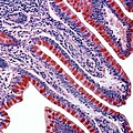 Colon Lining, Light Micrograph by Steve Gschmeissner