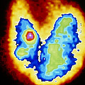 Coloured Gamma Scan Of Goitre Of The Thyroid Gland by Cnri