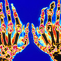 Coloured X-ray Of Hand In Gouty Arthritis by Pasieka