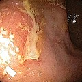 Crohn's Disease In The Rectum by Gastrolab