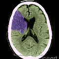 Ct Of Stroke by Medical Body Scans