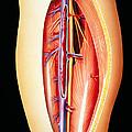 Deep Vein Thrombosis by David Gifford