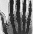 Early X-ray, 1897 by Science Source