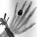Early X-ray Photograph Of A Hand Taken In 1896 by
