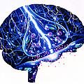 Epilepsy by John Bavosi