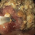 Food Retention From Gastric Cancer by Gastrolab