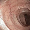 Healthy Colon, Large Intestine by Gastrolab