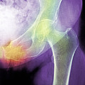 Hip Fracture Due To Osteoporosis by Medical Photo Nhs Lothian