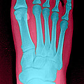 Human Foot by Medical Body Scans