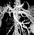 Human Kidneys by Ted Kinsman