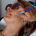Laser Skin Treatment by Tony Mcconnell