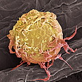 Lymphoma Cancer Cell, Sem by Steve Gschmeissner