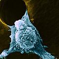 Metastasis by Science Source