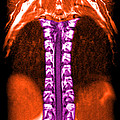 Mri Of Normal Thoracic Spinal Cord by Medical Body Scans