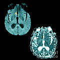 Mri Of Stroke by Medical Body Scans