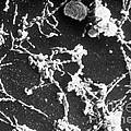 Mycoplasma Pneumoniae Sem by ASM/Science Source