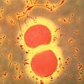 Neisseria Meningitidis Bacteria by A. Dowsett, Health Protection Agency