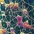 Nerve Cells, Sem by Steve Gschmeissner