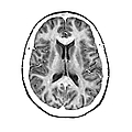 Normal Cross Sectional Mri Of The Brain by Medical Body Scans