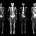 Nuclear Medicine Bone Scan by Medical Body Scans