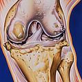 Osteoarthritic Knee by John Bavosi