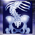 Osteoporosis Of The Spine, Ct Scan by Miriam Maslo