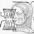 Par� Suture, 1500s by Science Source