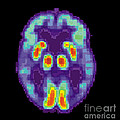 Pet Scan Of Alzheimers Disease Brain, 2 by Science Source