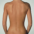 Posterior View Of The Torso Of A Standing Woman by Phil Jude