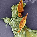 Protozoan Infecting Macrophage, Sem by