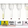 Rhesus Test On Blood: Negative Result by Doncaster And Bassetlaw Hospitals