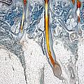 Scalp, Human by M. I. Walker