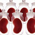 Spare Kidneys by Victor De Schwanberg