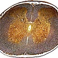 Spinal Cord, Light Micrograph by Dr Keith Wheeler