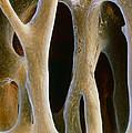 Spongy Bone by Prof. P. Mottadept. Of Anatomyuniversity \la Sapienza\