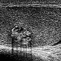 Testicular Cancer, Ultrasound Scan by Du Cane Medical Imaging Ltd