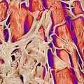 Trabeculae Carneae In The Heart, Sem by Susumu Nishinaga