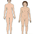 Turner Syndrome & Healthy Female by Science Source