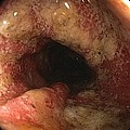 Ulcerative Colitis In The Sigmoid Colon by Gastrolab
