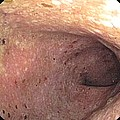 Ulcerative Colitis Of The Sigmoid Colon by Gastrolab